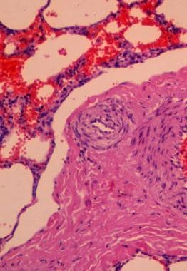 Lung biopsy demonstrating severe interstitial fibr