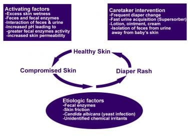 Diaper rash pathophysiology scheme.