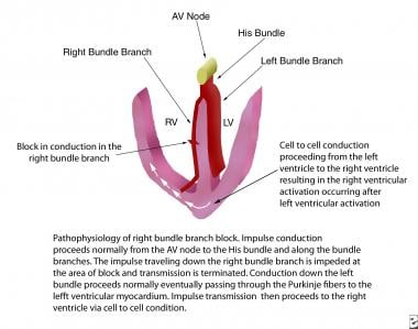 Pathophysiology of right bundle branch block. AV =