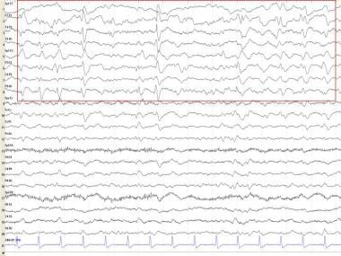 Periodic lateralized epileptiform discharges.