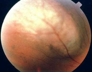 Color photograph of a dome-shaped choroidal melano