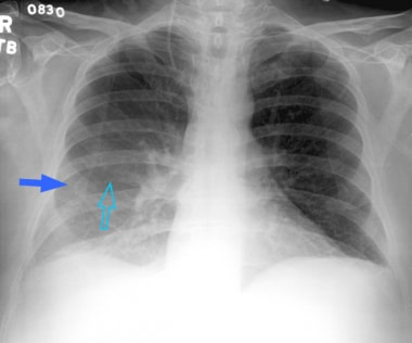 Posteroanterior supine view of the chest in a 60-y