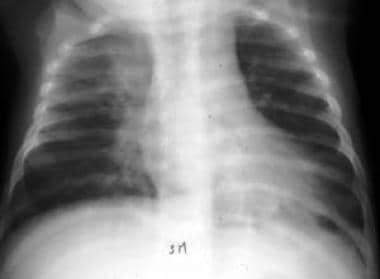 X-ray of a 4-month-old child shows pneumonia centr