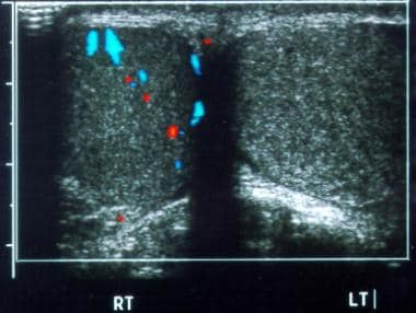 Testicular torsion. Transverse color Doppler image
