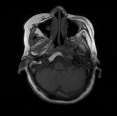 Nonenhanced T1-weighted MRI shows nasopharyngeal c