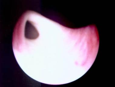 Ectopic ureter. Cystoscopic view of an ectopic ure