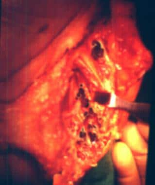 Intraoperative view of the lesion in the first and