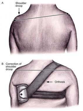 Shoulder orthosis for scapulohumeral alignment.