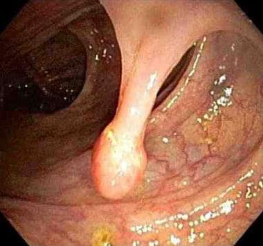 Endoscopic view of a pedunculated polyp.
