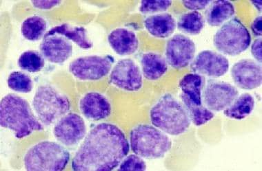 Acute lymphoblastic leukemia (ALL): Bone marrow sh