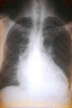 Chest radiograph of a Bolivian patient with chroni