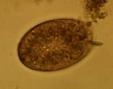 Egg of Fasciolopsis buski. Images reproduced from