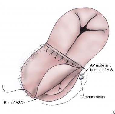 The atrial septal defect (ASD) is closed with an a