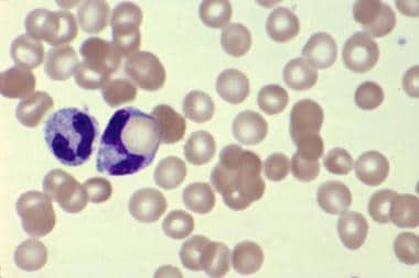 Blood smear showing spherocytosis, polychromatophi