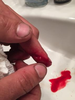 Fresh finger laceration.