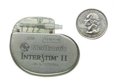 The InterStim® System neurostimulator manufactured