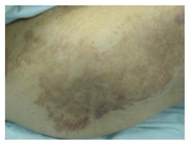 Necrolytic migratory erythema over the back with a