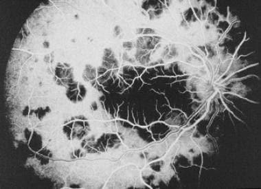 Fluorescein angiogram of acute posterior multifoca
