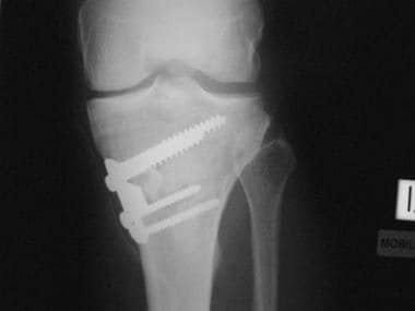 Total knee arthroplasty. Radiograph demonstrating
