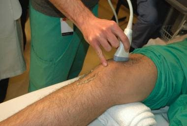 Anterior approach to visualizing a knee effusion w