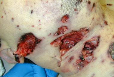 Multiple, irregular wounds due to an intermediary