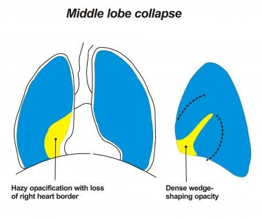 Image depicting a right middle lobe collapsing med