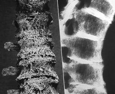 Spine involvement in calcium pyrophosphate deposit