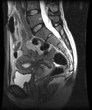Sagittal T2-weighted magnetic resonance image of s