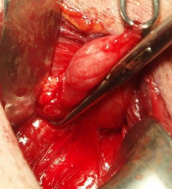 View of a Zenker diverticulum with transverse fibe