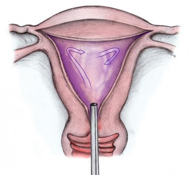 Hydrothermal endometrial ablation (HTA) device.
