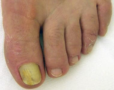 Distal subungual onychomycosis. Onycholysis and ye