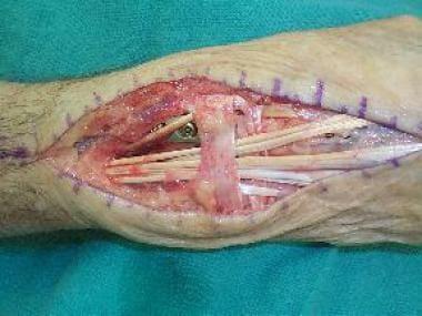 Wrist arthrodesis. Retinaculum split and repaired