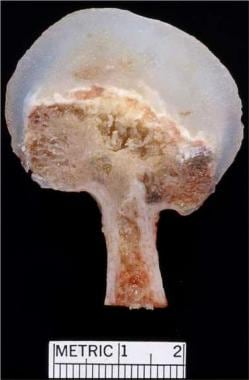 Solitary osteochondroma. Cut surface of surgical o