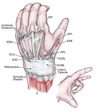 Extensor system of the hand. Note the juncturae te