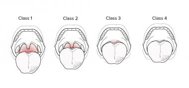 The Mallampati Classification is illustrated. The