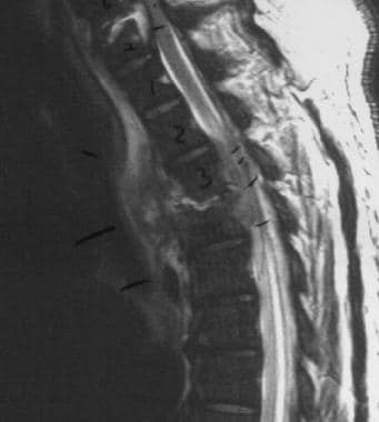 Spinal epidural abscess with cord edema and compre