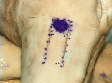 The photograph shows advancement flap incisions, w