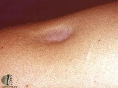 Localized lipoatrophy from a steroid injection. Co