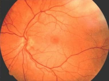 Talc embolus located around the macula in a patien