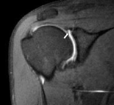 MRI arthrography can help to identify labral tears