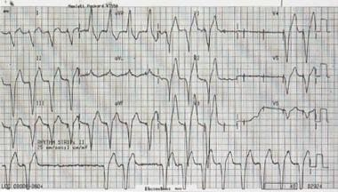 Intermittent periods of ventricular capture.