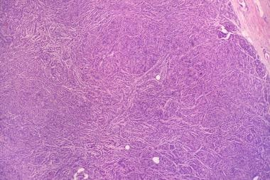 A photomicrograph of a myoepithelioma. The upper,