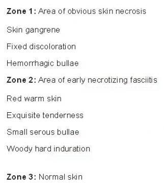 Zones of necrotizing fasciitis.