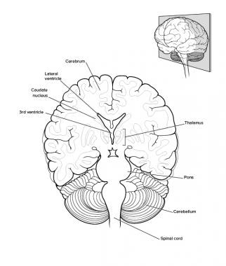Brain anatomy overview gross anatomy cerebrum gross anatomy brain coronal view ccuart