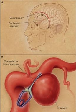 Craniotomy and clipping of aneurysm. Skin incision