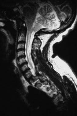 T2-weighted sagittal magnetic resonance image thro