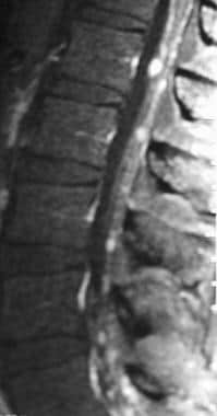 Sagittal T1-weighted postcontrast image of the lum
