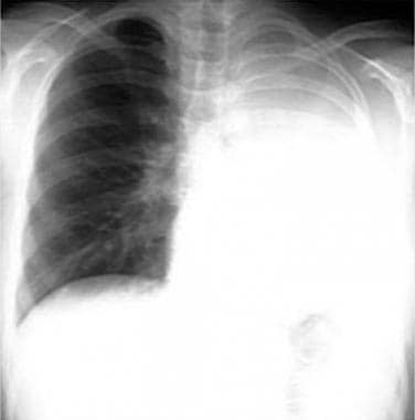Non–small cell lung cancer. Complete left lung col