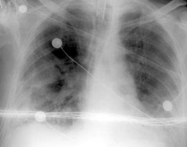 Portable chest radiograph in a patient with acute