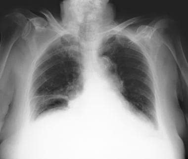 Pneumoperitoneum, mimics. Plate atelectasis at the